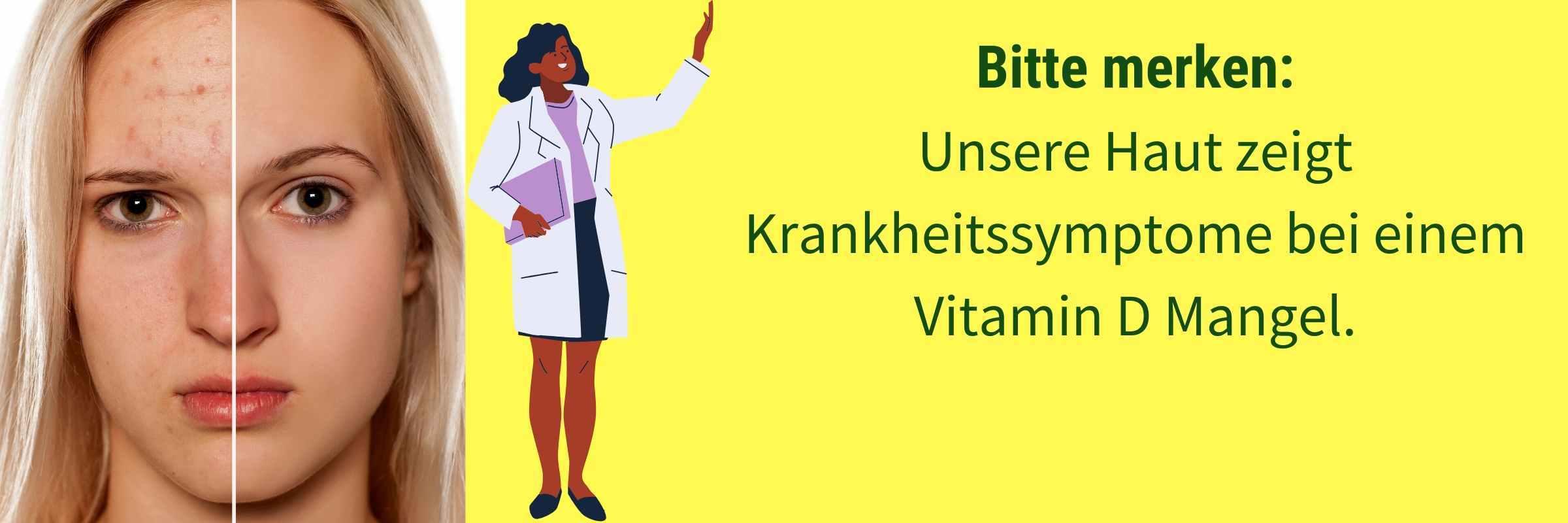 Vitamin D Hautkrankheiten