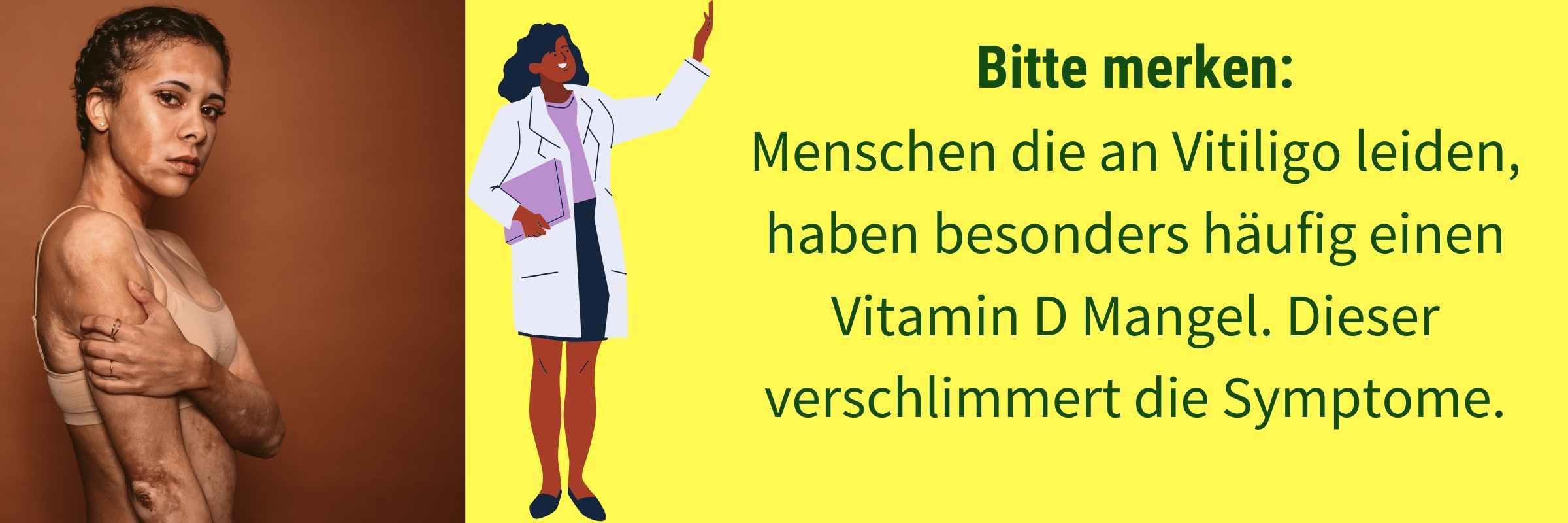 Vitamin D Vitiligo