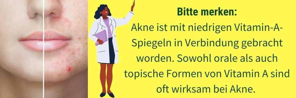 Vitamin A Mangel Akne