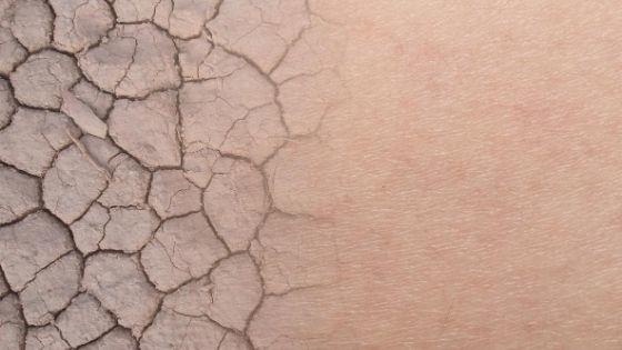 Titelbild Trockene Haut Vitaminmangel