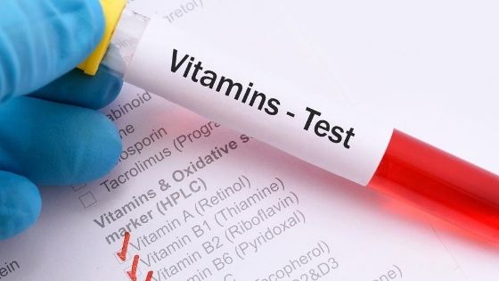 Titelbild Vitaminmangel Test
